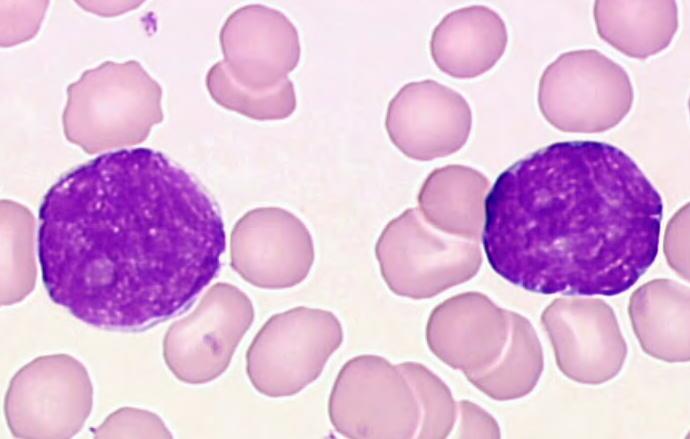 Haematologie medica